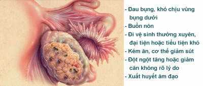 Bệnh lý ung thư buồng trứng