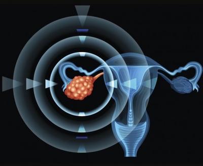 90% ung thư buồng trứng có thể được chữa khỏi