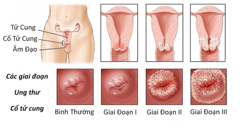 9 dấu hiệu cảnh báo ung thư cổ tử cung thường gặp