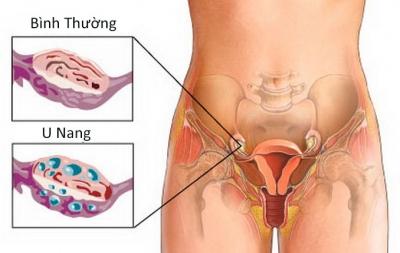 U nang buồng trứng chẩn đoán và điều trị