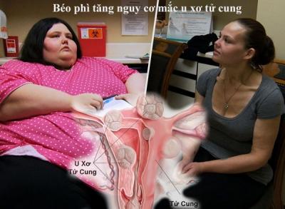 Béo phì tăng nguy cơ mắc u xơ tử cung ở nữ giới