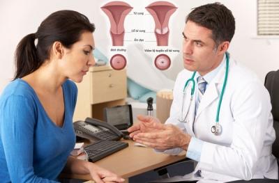 Viêm lộ tuyến chẩn đoán và điều trị