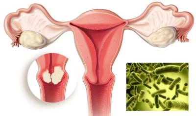 Chủ động phòng ngừa ung thư cổ tử cung