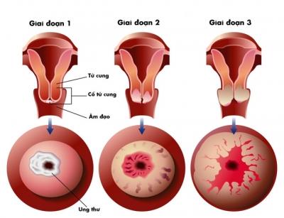 Chuyên gia đầu ngành chỉ ra 5 cách phát hiện sớm ung thư cổ tử cung