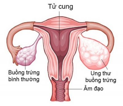 6 dấu hiệu cảnh báo ung thư buồng trứng không thể xem thường