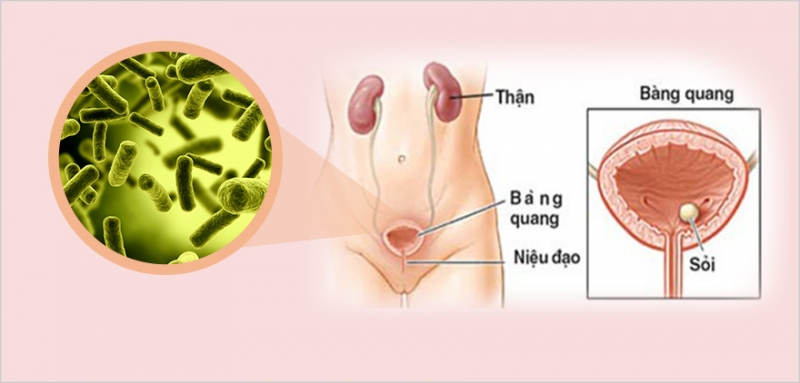 Bệnh viêm niệu đạo ở nữ giới tăng cao vào mùa hè
