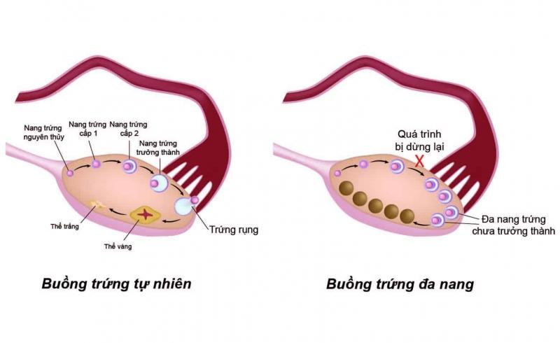 Truy tìm nguyên nhân gốc rễ gây bệnh buồng trứng đa nang