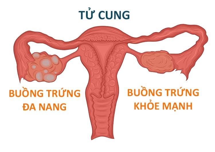 Phân biệt buồng trứng đa nang và u nang buồng trứng