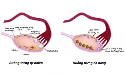 Những xét nghiệm nào chẩn đoán buồng trứng đa nang?