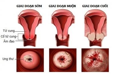 """Đâu là """"thủ phạm"""" gây ung thư cổ tử cung?"""