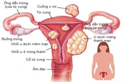U xơ tử cung thường xuất hiện ở vị trí nào?