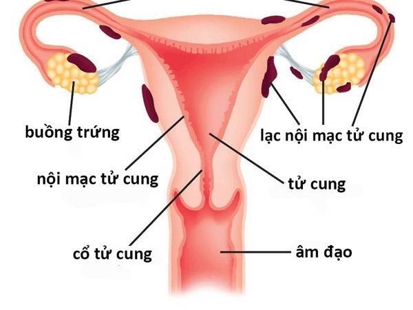 Lạc nội mạc tử cung làm tăng nguy cơ biến chứng trong thai kì