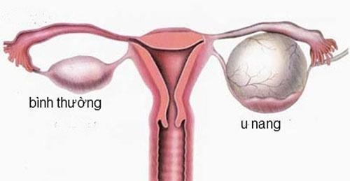 Điểm danh 5 bệnh ở buồng trứng làm tăng nguy cơ vô sinh – hiếm muộn ở nữ giới