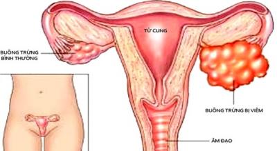 Cảnh báo 5 nguyên nhân gây viêm buồng trứng dẫn đến vô sinh ở chị em