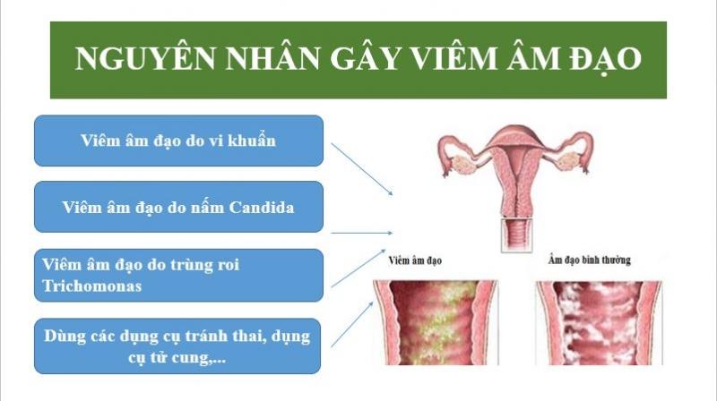 80% chị em mắc bệnh phụ khoa là do viêm nhiễm âm đạo